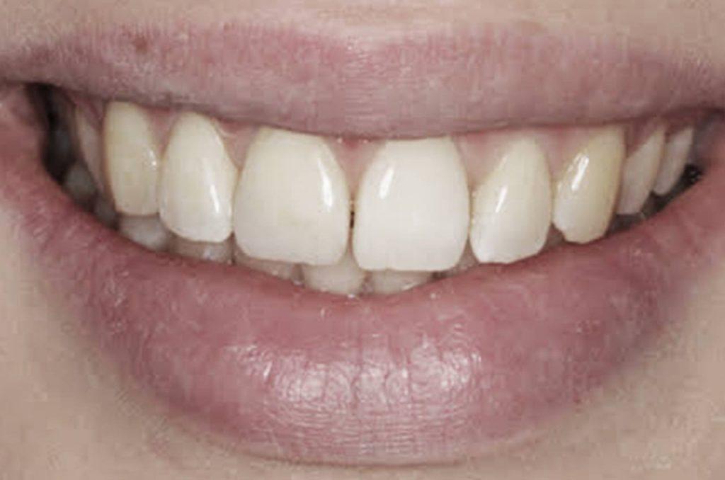 Esthetiek in Vathorst, uw tandarts in Amersfoort - Tandartsen Centrum Vathorst
